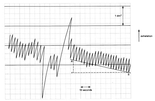 Typical spirometer trace